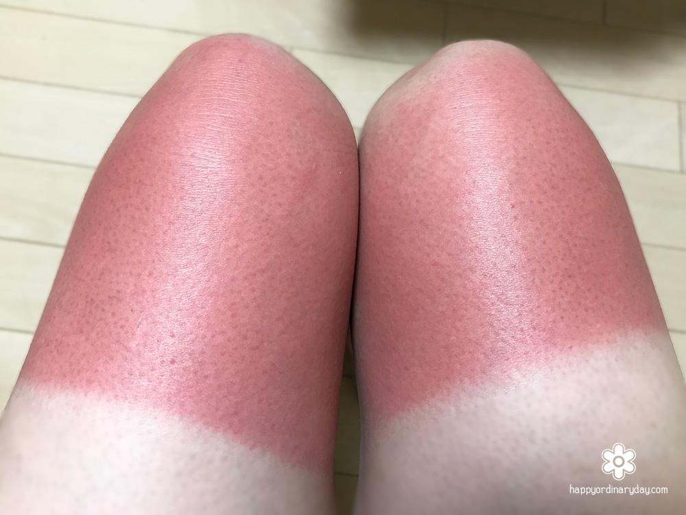 火傷級の日焼け痕